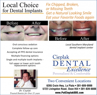 Local Choice Full-Arch Implant-Supported Dentures